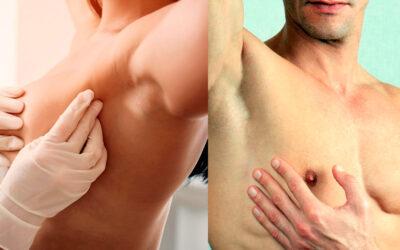 El cáncer de mama también afecta a los hombres